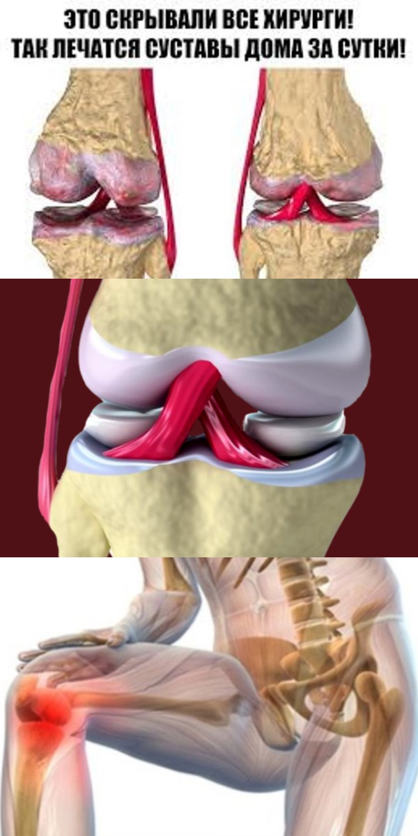 Это скрывали все хирурги! Так лечатся суставы дома за сутки Эта микстура «скорая помощь» от боли в суставах.