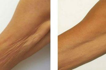Мощное средство от морщинистой шеи, дряблых рук и рыхлых бедер