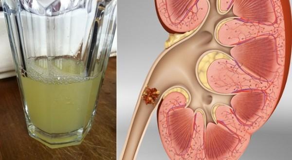 Попрощайтесь с камнями в почках всего с помощью половины стакана этого напитка