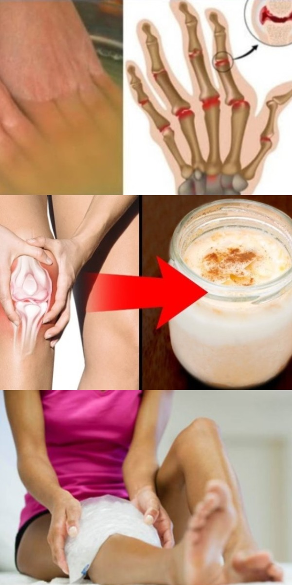 5 способов лечения суставов яблочным уксусом