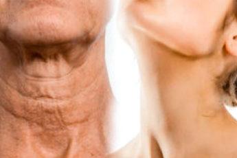Простые способы о том, как заставить шею выглядеть моложе — это просто потрясающе 1